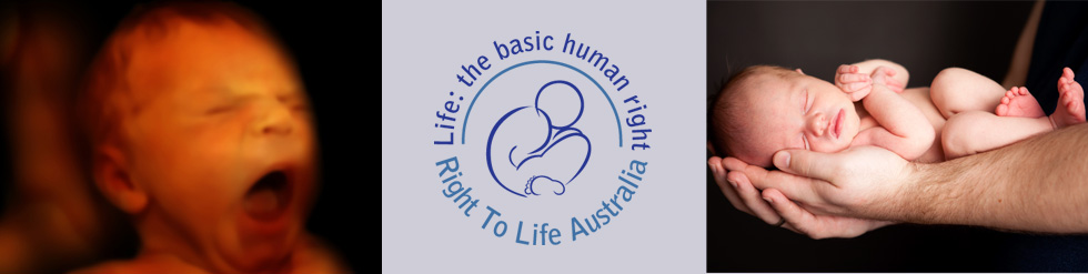 ABORTION | There are over 100 000 abortions in Australia every year-that is about 275 unborn children aborted every day.